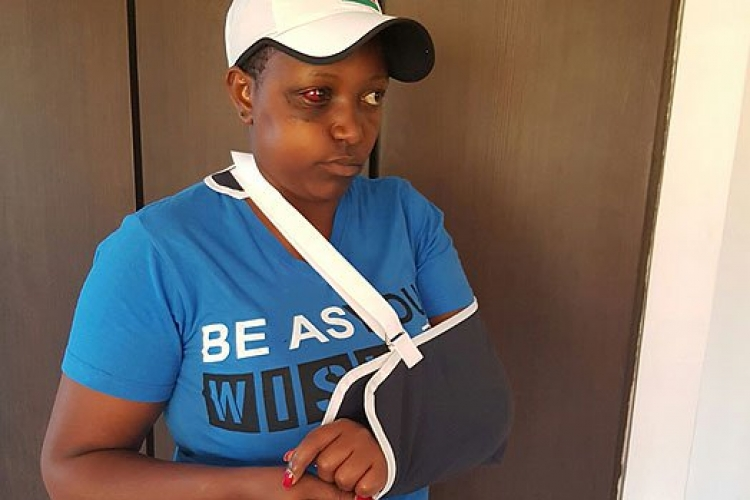 Female Nyeri MCA Sustains Serious Injuries after Male Colleague Hits Her with a Beer Bottle During Bench-Marking Tour in Tanzania