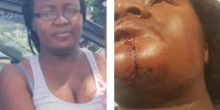 Kenyan Woman in Minnesota Nursing Serious Injuries after Attack by Husband at a Petrol Station